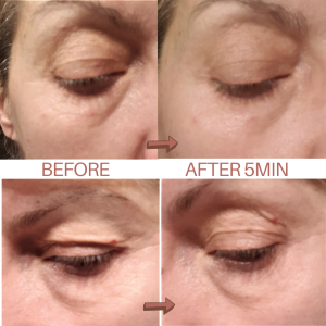 beautical instant lifting serum before after immediate effect formula anti-wrinkle anti-aging moisturizing