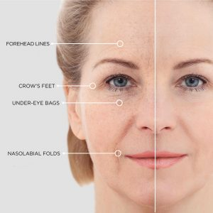 instant lifting serum beautical application wrinkles eyes front