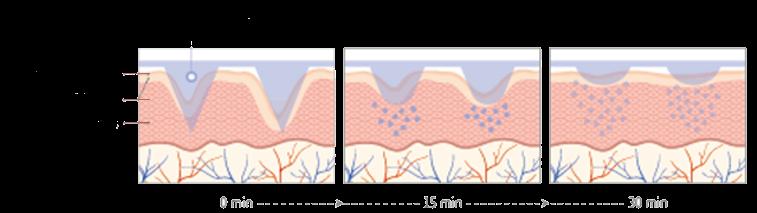 beautical microneedle technology